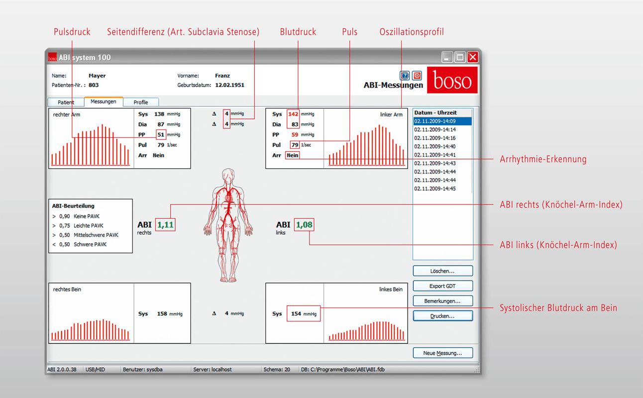Knöchel-Arm-Index